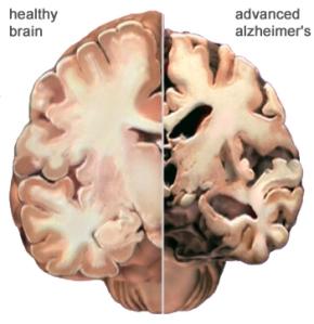 Healthy brain compared to Alzheimer damaged brain